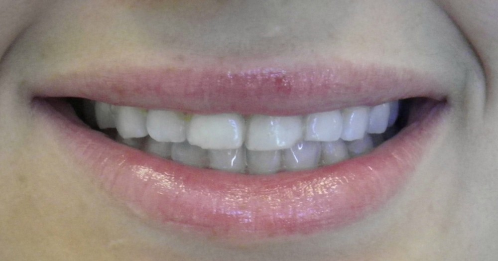 Before Veneers Done in Brookline Dental Office