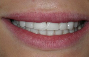 Six Finished Veneers from Brookline Village Dental