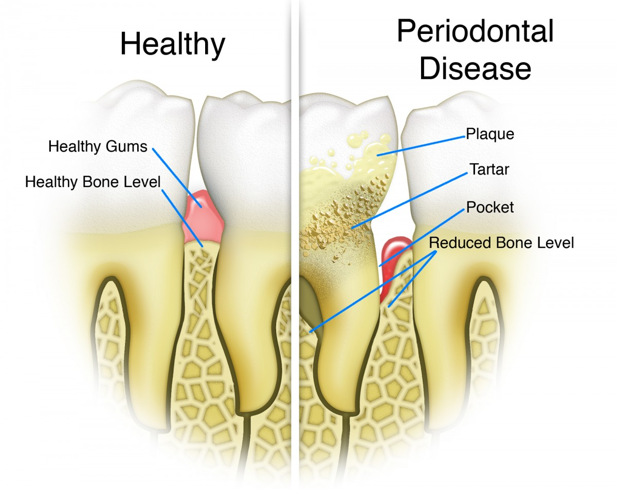 Showing the difference between healthy gums and periodontal disease.