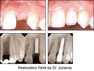 Implant restored by Dr. Juriansz