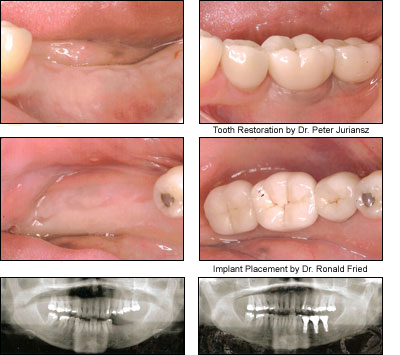 Implants restored by Dr. Juriansz