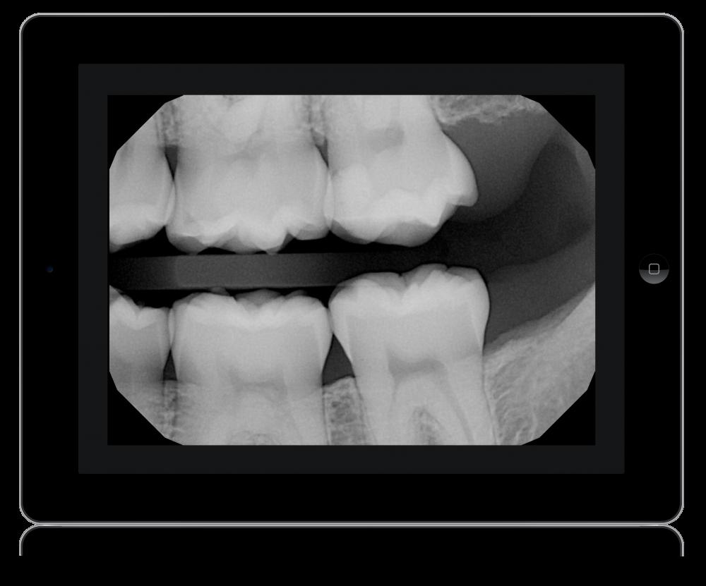 An iPad showing a dental x-ray.