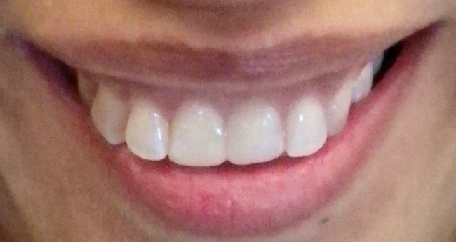 After Cosmetic Bonding from B rookline Dentist